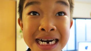 乳歯が取れた