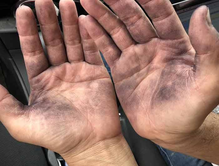 手が真っ黒